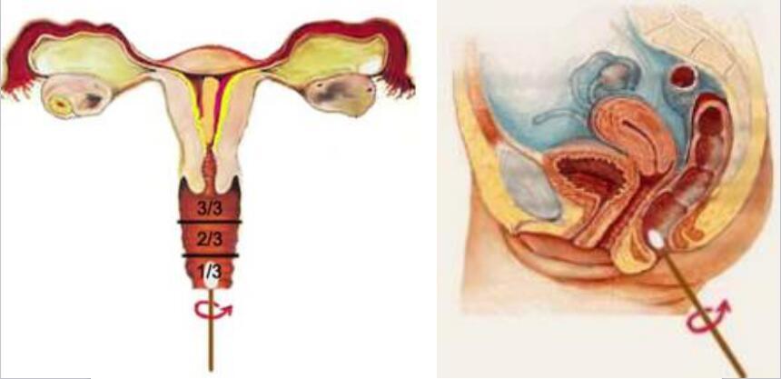 生殖道和直肠取材示意图